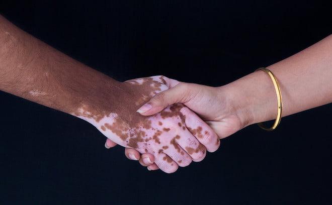 vitiligo-borbetegseg-termeszetgyogyasz